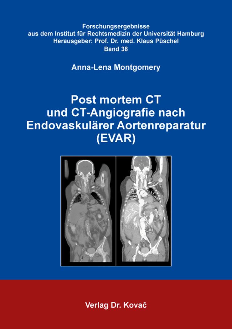 Cover: Post mortem CT und CT-Angiografie nach Endovaskulärer Aortenreparatur (EVAR)